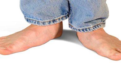 platvoeten en hardloopschoenen